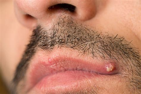 Pimple on Lip Causes and Treatment