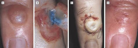 Ganglion of the Distal Interphalangeal Joint (Myxoid Cyst