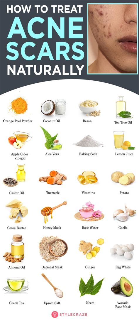 4 Natural Remedies for Acne That Will Clean Your Skin