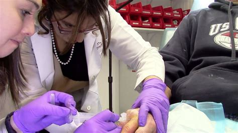 Procedure on Trigger Finger and Ganglion Cyst - YouTube