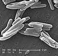 Category:Mycobacterium tuberculosis - Wikimedia Commons